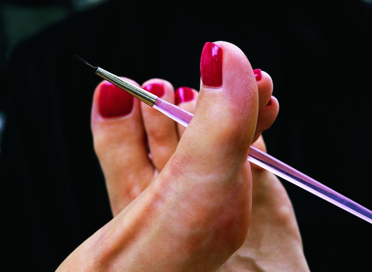 бородавки на икрах ног